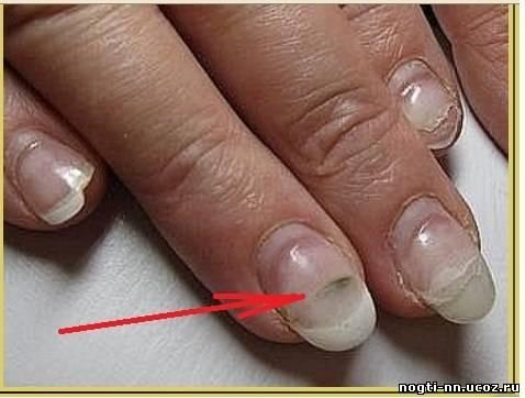 Продольные полосы на ногтях причины лечение